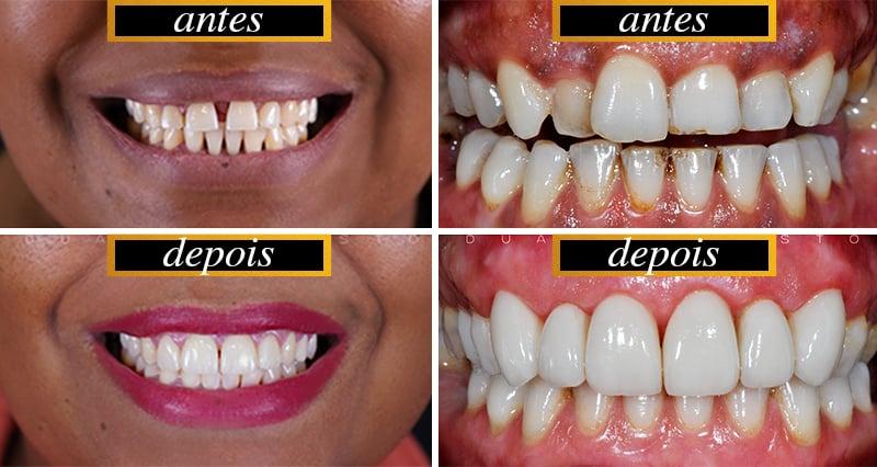 Casos: Lente de Contato Dental Antes e Depois