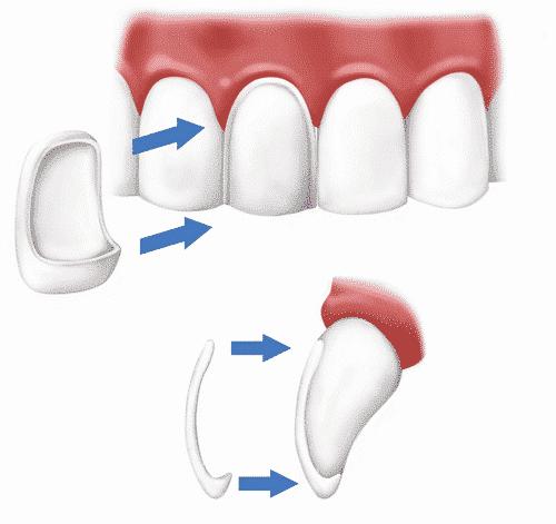 Como é a Lente de Contato Dental?