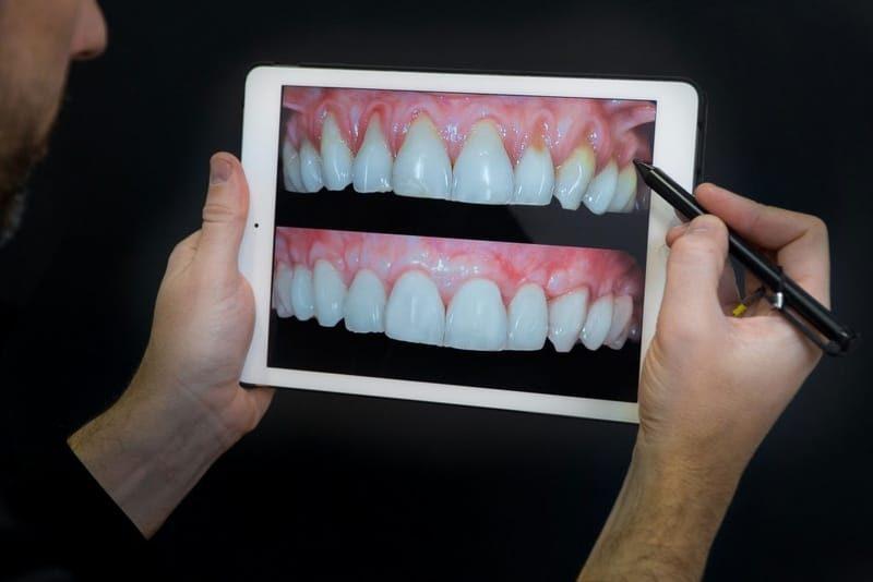 Foto da boca com Resultado da Cirurgia de Retração Gengival