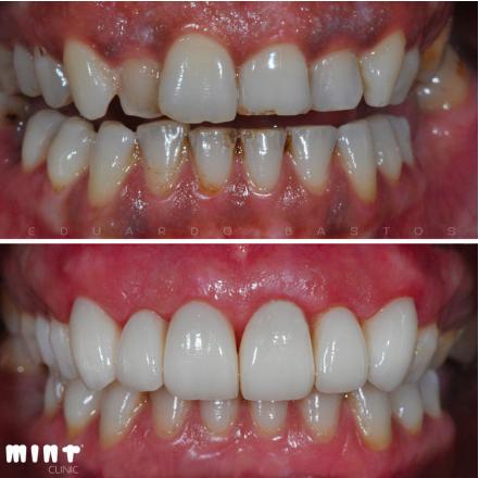 Antes e Depois do Tratamento para Clarear a Gengiva Escura (Pigmentada)