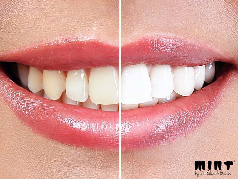 Resultado do Branqueamento Dentário em Lisboa na Clínica Mint Lisboa