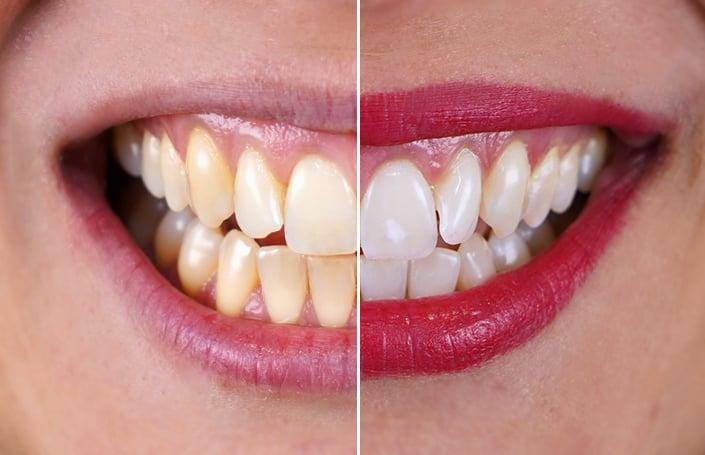 Dentes Brancos com Branqueamento