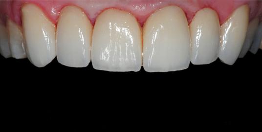 coroas dentárias