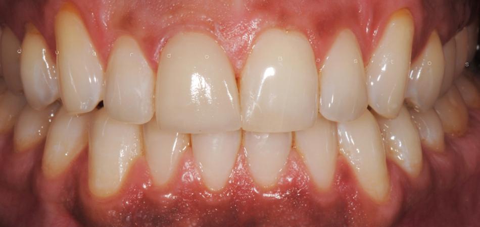 Faceta Dentária Unitária