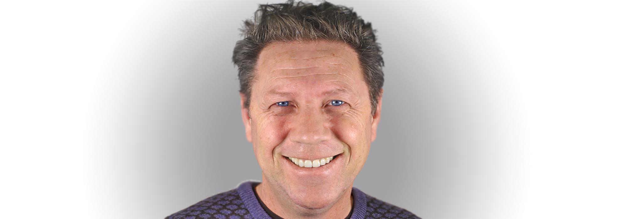 Resultado Faceta Dentária
