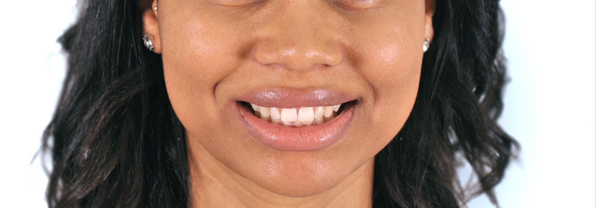 facetas dentárias #6 alexandra morais cara antes_VF