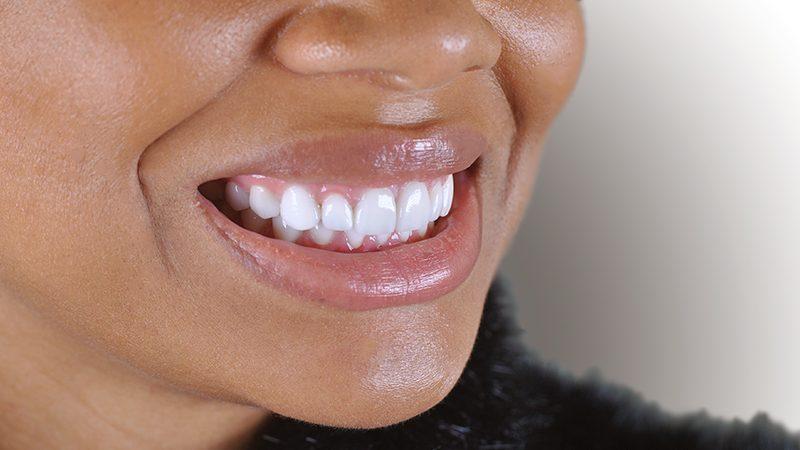 Resultado tratamento facetas dentarias em Lisboa
