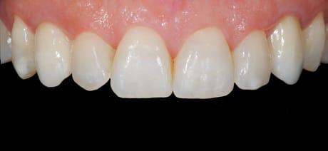 Resultado Coroa Sobre Implante Depois