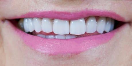 Faceta Dentaria Depois