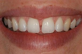 Fechar Diastema (Espaço entre os dentes)