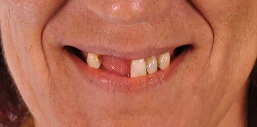 Implante Dentário Antes