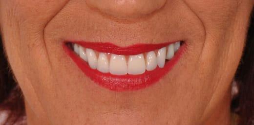 Implante Dentário Depois