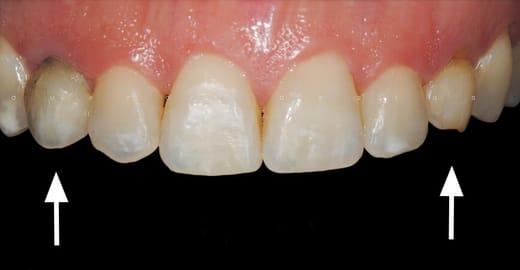 Implante Dentario Unitario Antes