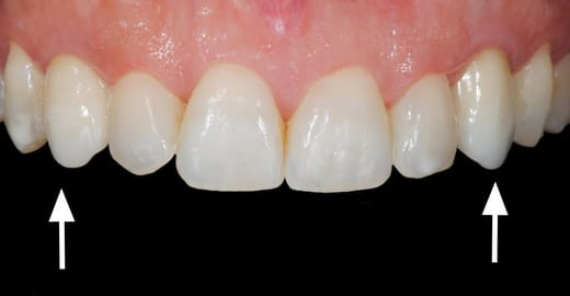 Implante Dentario Unitario Depois