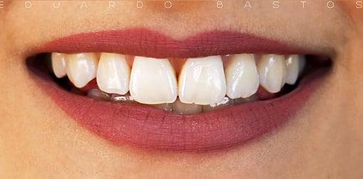 branqueamento-dentario-antes-depois-A1