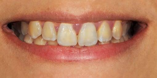 branqueamento-dentario-antes-depois-A2