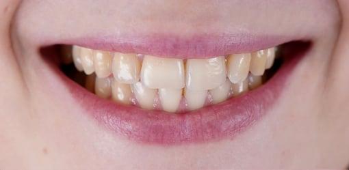 branqueamento-dentario-antes-depois-B1