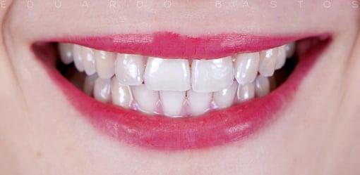 branqueamento-dentario-antes-depois-B2