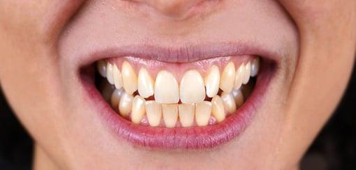 branqueamento-dentario-antes-depois-C1