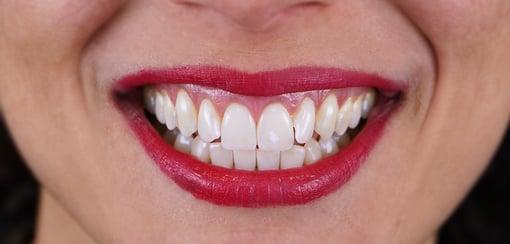 branqueamento-dentario-antes-depois-C2