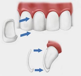 Como colocar Facetas Dentarias