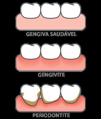 Tratar Manchas nos Dentes