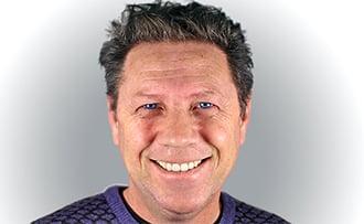 Resultado facetas dentarias antes e depois