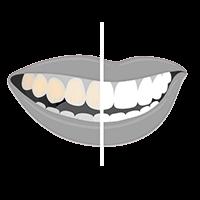 Teeth Whitening Lisbon