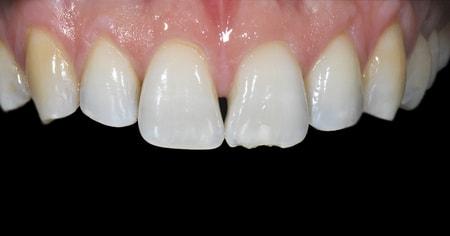 colocar-facetas-dentarias-ricardorosa-antes