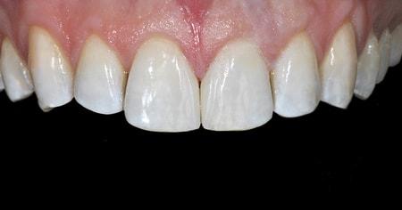 colocar-facetas-dentarias-ricardorosa-depois
