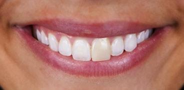 Facetas Dentarias Antes Depois: Catarina 1