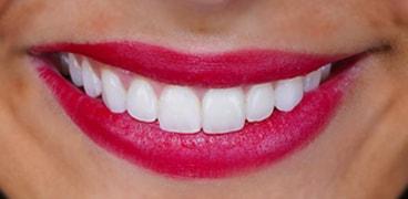 Facetas Dentarias Antes Depois: Catarina 2