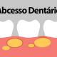 Abcesso Dentários: o que é e como tratar?