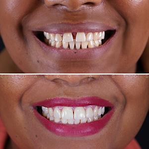 Caso 01: Fechar Diastema Dentes Separados