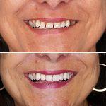 Caso 02: Corrigir Dentes Separados