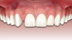 Caso Agenesia Dentaria