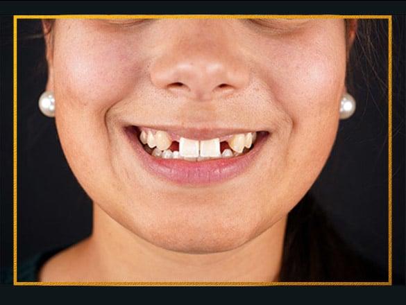 Caso Implante Dentário Lisboa Antes