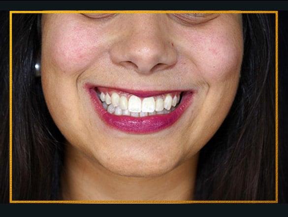 implantes-dentarios-lisboa-depois