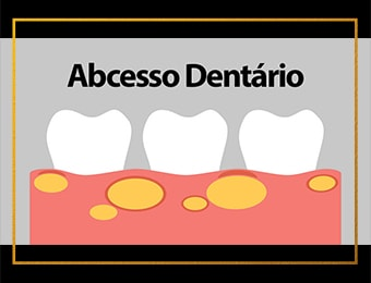 Abcesso Dentário e Gengival