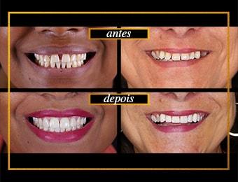 Tratamento Diastema: Antes e Depois