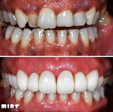 Tratamento Manchas Gengiva Escura (Antes e Depois)