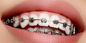 Aparelho Dentário Autoligado