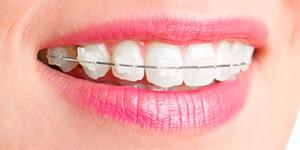 Aparelho Dentário Fixo Estético
