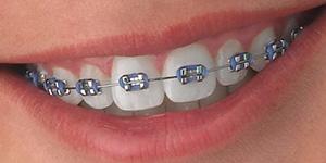 Aparelho Dentário Fixo Metálico Convencional