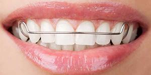 Aparelho Dentário Removível