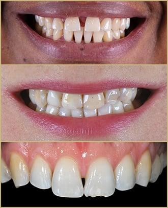 Tratamentos com Lente de Contato Dental