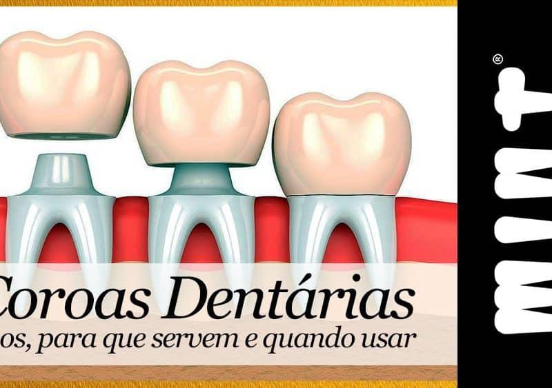 Processo Colocar Coroa Dentaria em Lisboa
