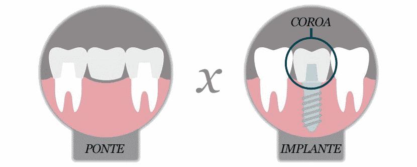 Diferenças entre Pontes Dentárias e Implantes Dentários