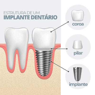 Estrutura de um implante dentário