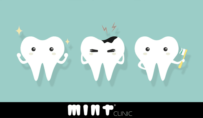 Tratar Cárie Dentária em Lisboa